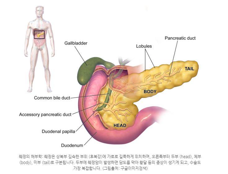 췌장암이무서운이유.JPG